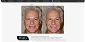 Treatment Button: Smile Makeover (Shown in the Print Preview Screen)